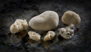 камни в почках и мочевом пузыре