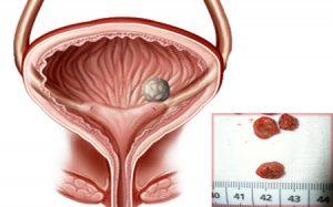 показания для катетеризации мочевого пузыря