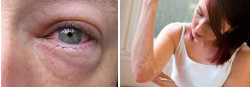 проявления аллергии на животное