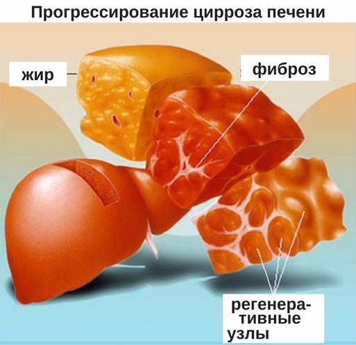 причины цирроза у животных