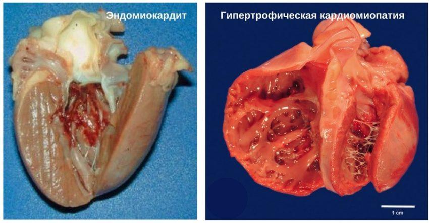 патология сердечно-сосудистой системы у кошек