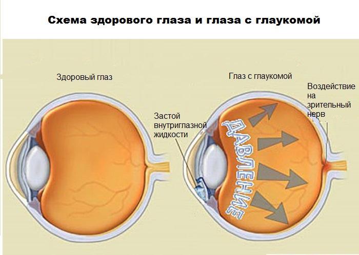 механизм развития глаукомы