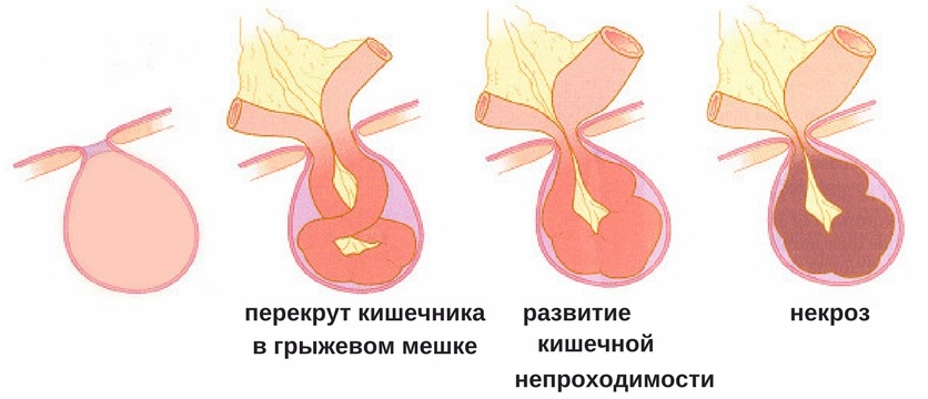 последствия отсутствия лечения пупочной грыжи