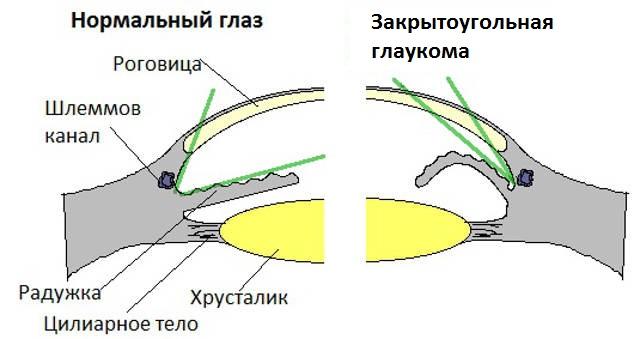 причины глаукомы у кошек