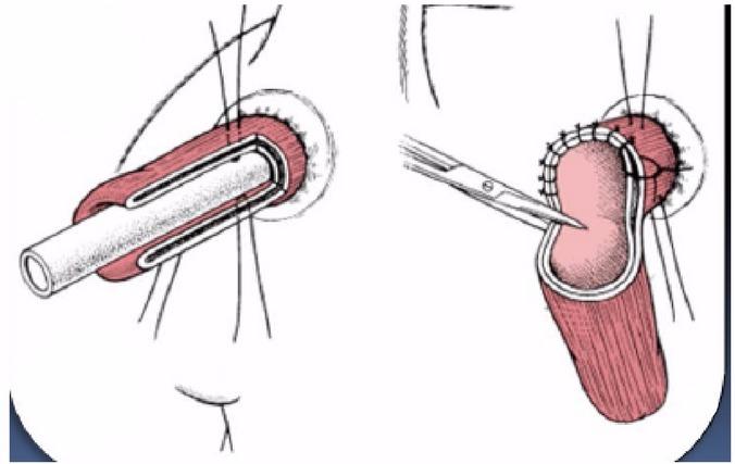 оперативное лечение пролапса прямой кишки