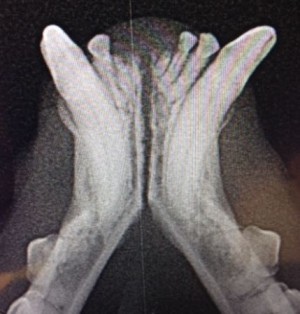 диагностика перелома челюсти