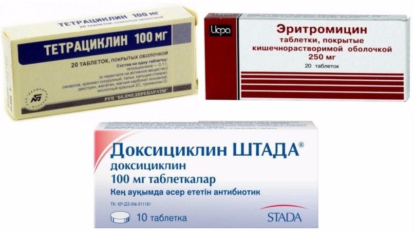 лечение хламидиоза