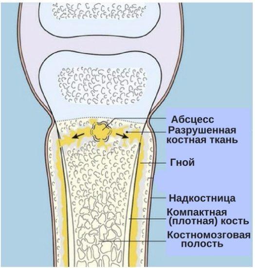 строение кости с остеомиелитом