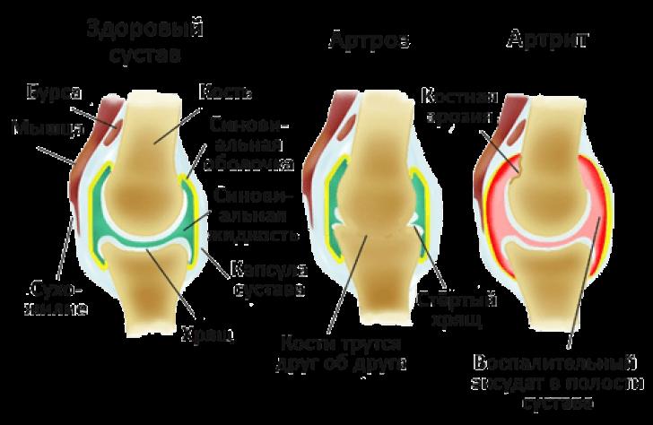 анатомия сустава при артрите