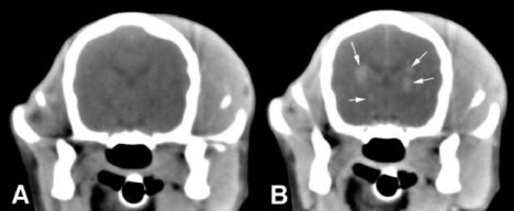 диагностика менингита