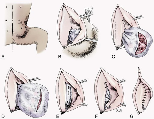 лечение грыж хирургическое