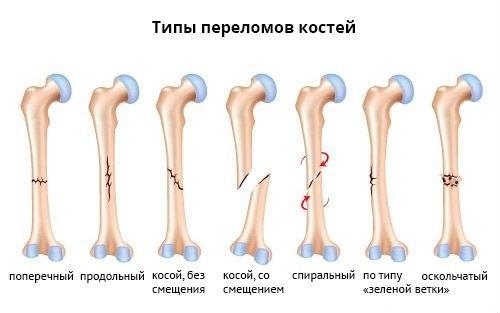 лечение переломов у собак