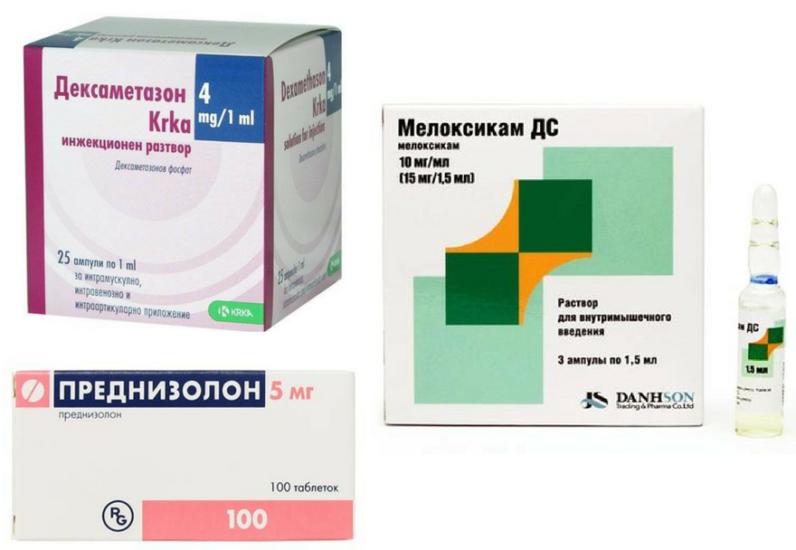 лечение миокардита