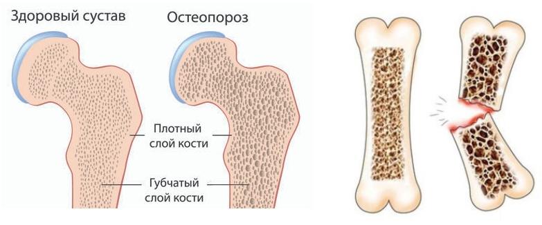 Остеопороз у собак